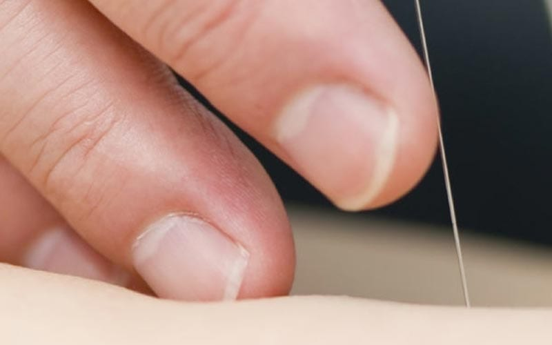 Dry Needling in Almere